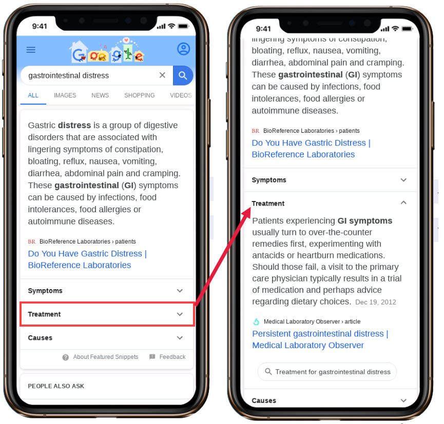 Featured Snippets with expanders for more Featured Snippets